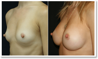 Breast Surgery Before and After