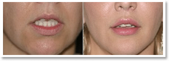 Lip Lift Surgery Before and After