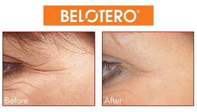 Belotero Beverly Hills wrinkle erasing