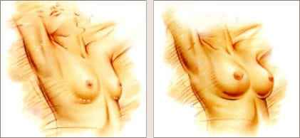 Beverly Hills breast augmentation Dr. Haworth