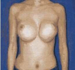 Beverly Hills breast implant revision