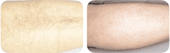 Beverly Hills Skin Lab leg hair removal