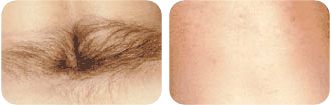 Beverly Hills Skin Lab lower back hair removal