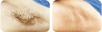 Beverly Hills Skin Lab underarm hair removal