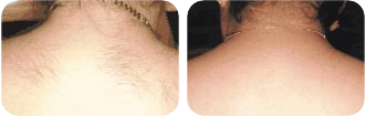 Beverly Hills Skin Lab upper back hair removal