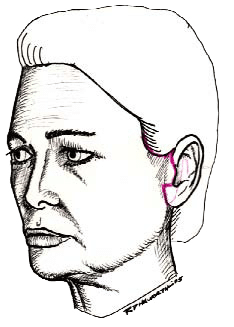 Facelift expert Beverly Hills
