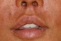 Beverly Hills upper lip lift