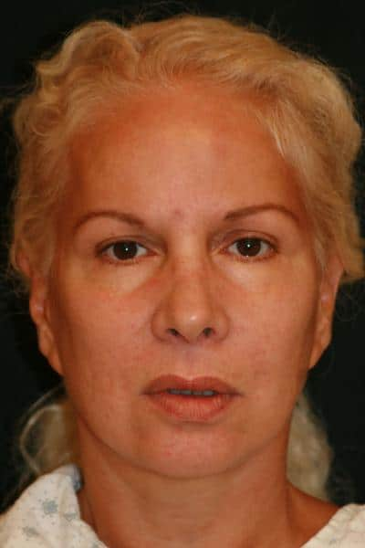 Classic Facelift Before & Before