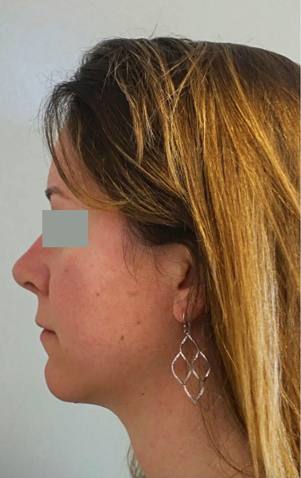 Classic Facelift After & After