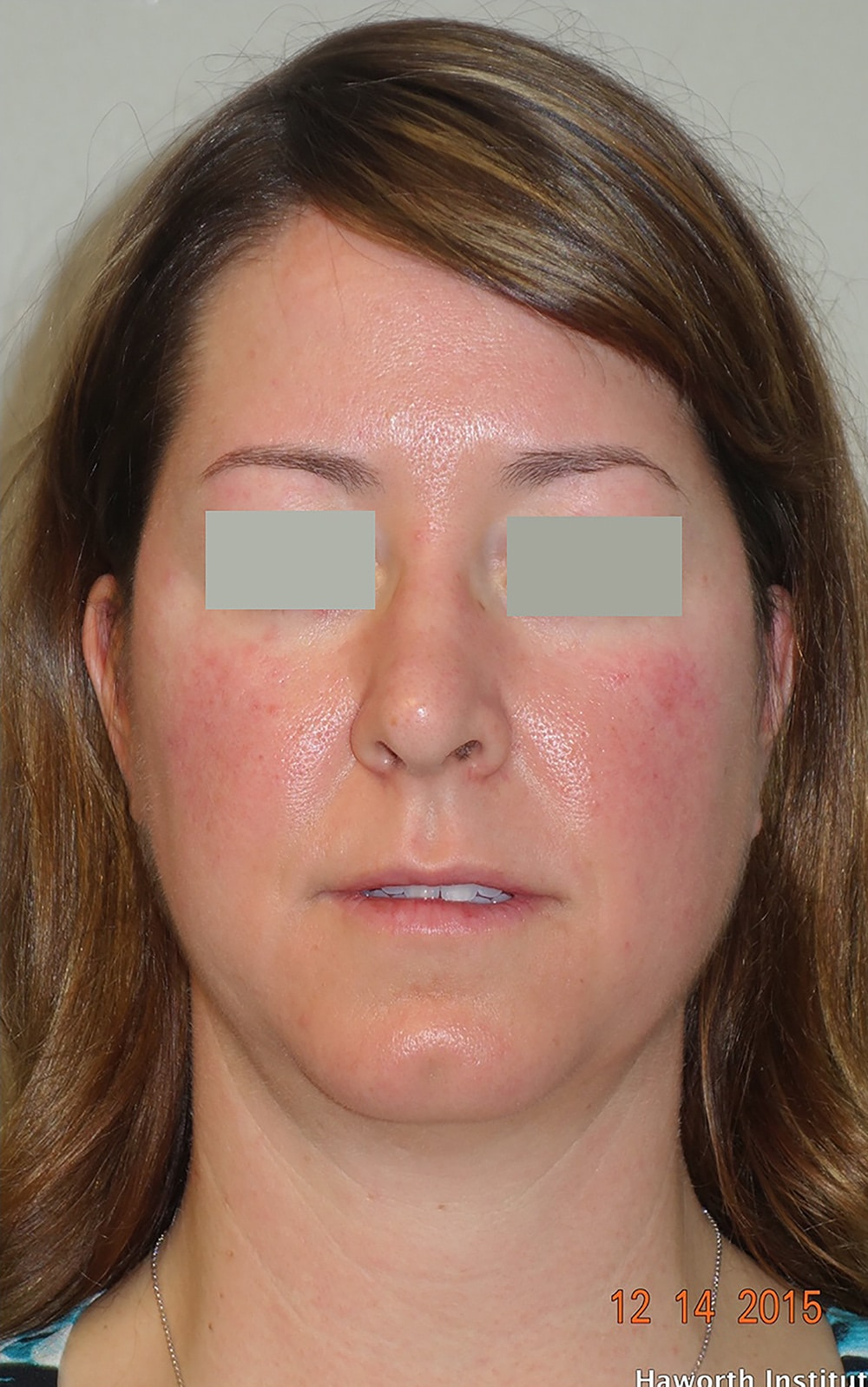 Classic Facelift Before & After