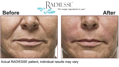 Radiesse Beverly Hills minimize aging