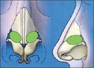 alar batten grafts - rhinoplasty revision procedure