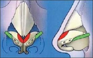 lateral crural strut grafts - rhinoplasty revision procedure