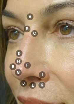Surface points on nose