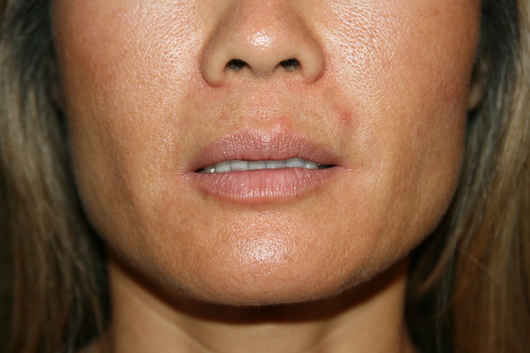 how to stop discoloration around upper lip