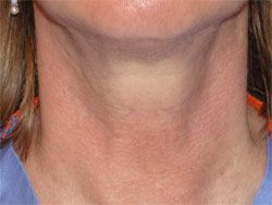 Horizontal Neck Lines, beverly hills nosejob, beverly hills rhinoplasty