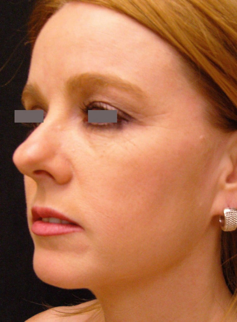 The Bulbous Nasal Tip In Rhinoplasty | Dr. Haworth