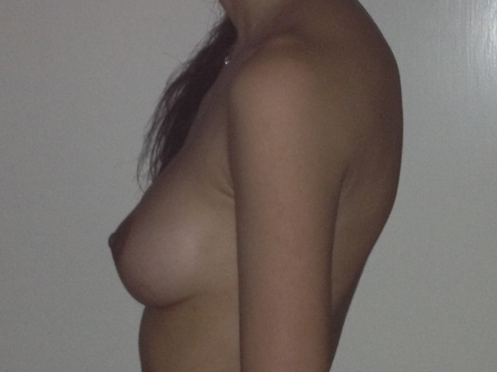 After Breast Augmentation with rounded shoulders