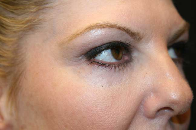 After a lower blepharoplasty (eyelid tuck)
