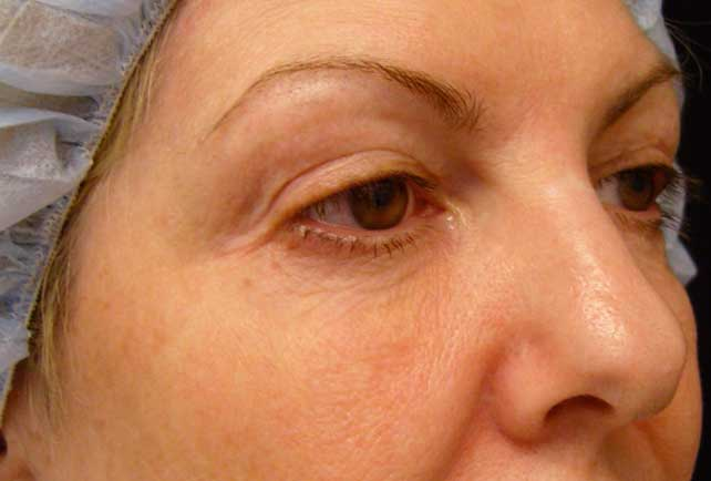 Oblique view of aging lower eyelid