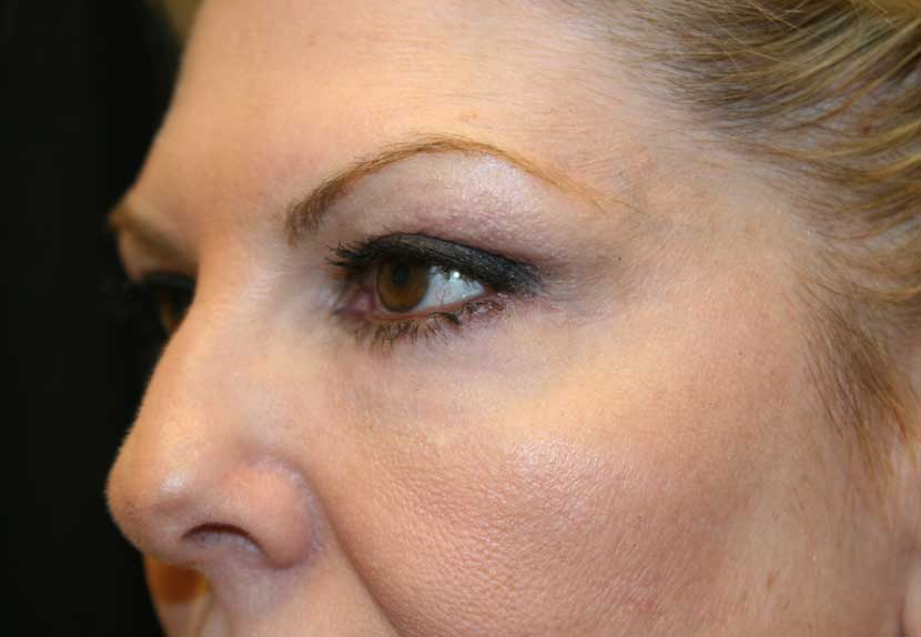 After a lower blepharoplasty performed by Dr. Randal Haworth in Beverly Hills