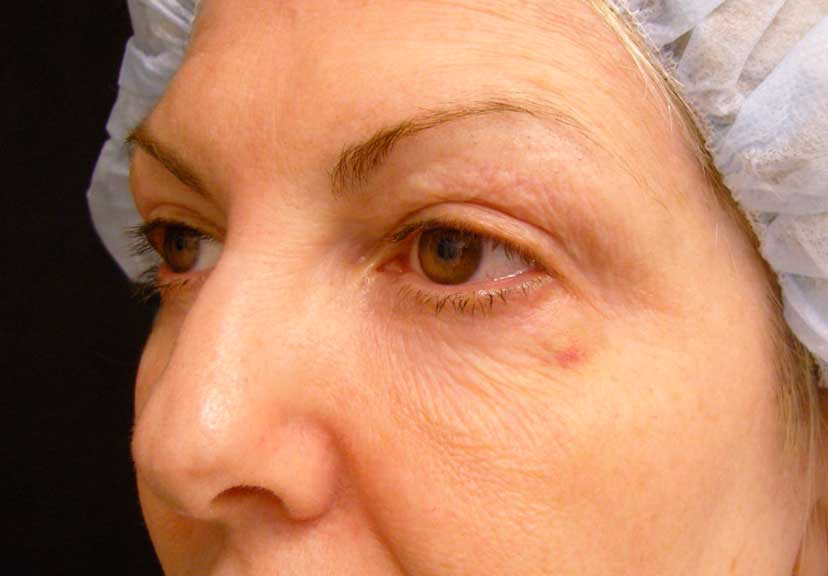 An alternative view of this patient with aging lower eyelids