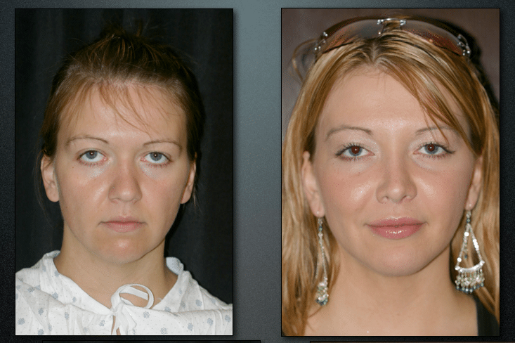 midfacelift, browlift, blepharoplasty, upper ,lip lift, fat transfer to lips