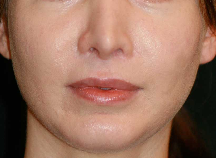 Dr. Haworth performed an upper lip lit along with nostril rim lowering and fat transfer to the lips