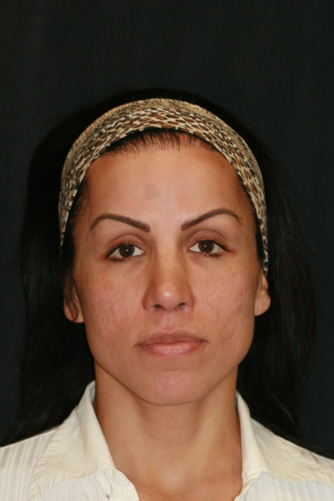 Transgender patient after composite grafts to lower the nostril rims and an upper lip lift with DAO release