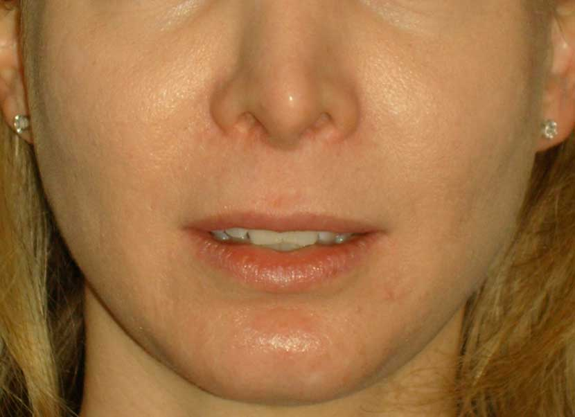 "Patient with a long upper lip and retracted ""Samurai""nostrils after a previous rhinoplasty"