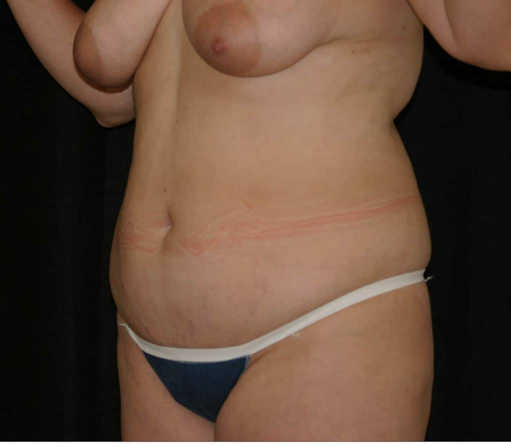 Before Liposuction of the abdomen and waste