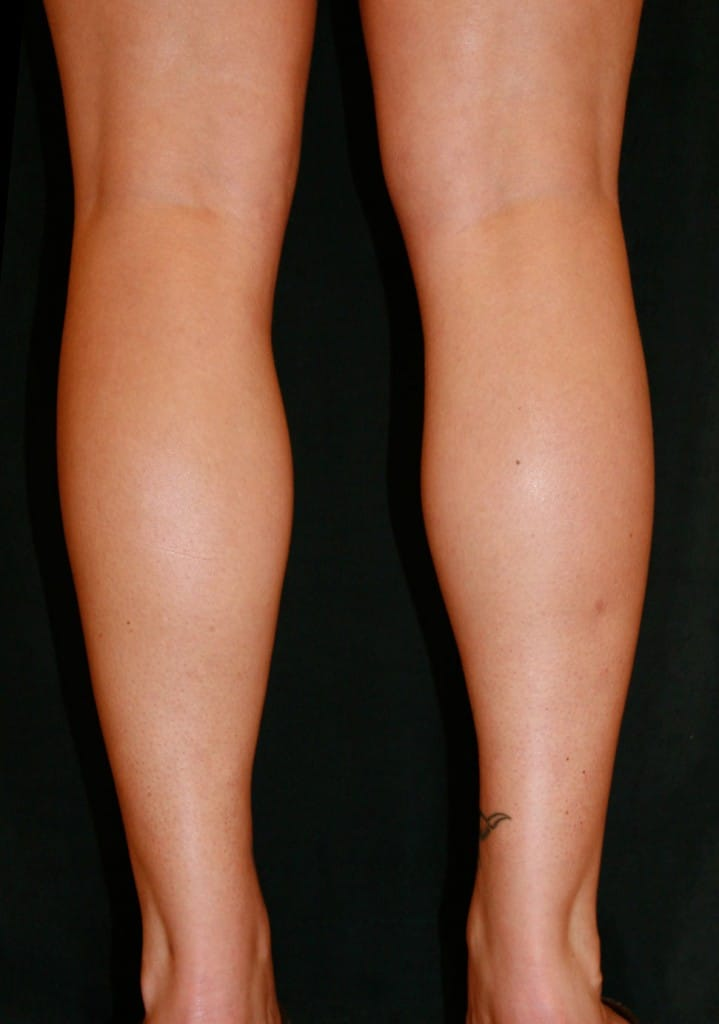 360 liposculpture of the calve, knees and ankles