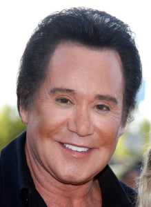 Wayne Newton after an overaggressive upper blepharoplasty. He probably would've been best served by a subtle brow lift alone