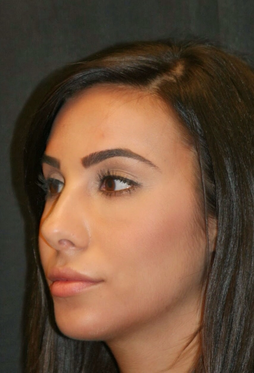 three-month follow-up of the same patient demonstrating the chin augmentation as well as the minor change to her nasal tip