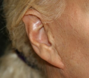 Pixie earlobe after a facelift. Note scar in front of the ear