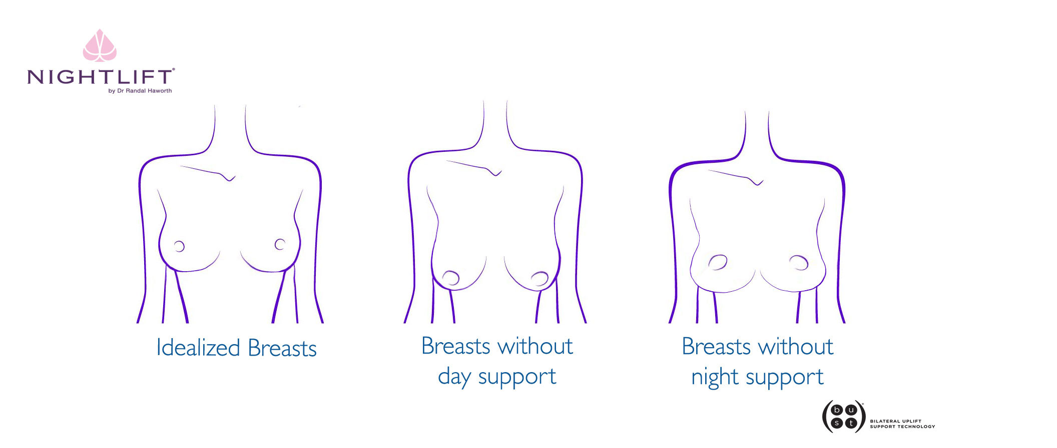 Breasts without bras