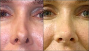 Bellafill injectable , non-surgical rhinoplasty