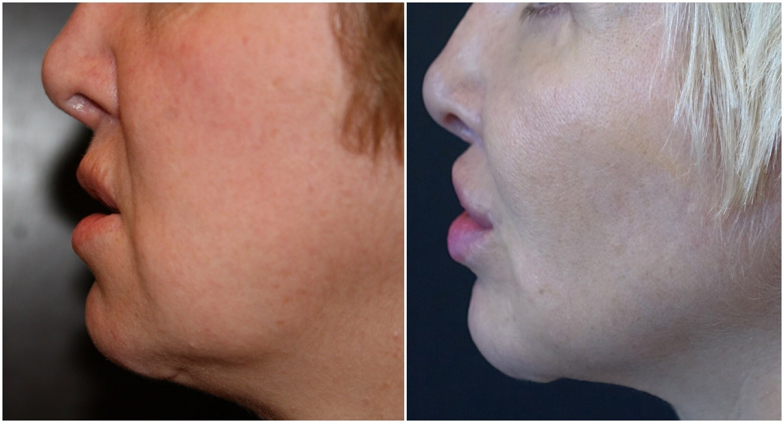 After combination micro liposculpture and fat transfer. Note the smoother jawline and submental (chin) region all performed with delicate no scar facial surgery without a face or neck lift.