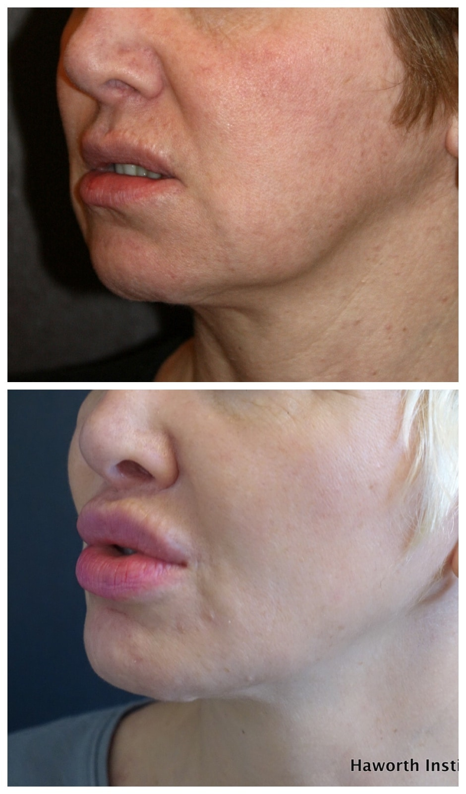 Dramatic perioral rejuvenation including improvement of the jowl and chin utilizing a combination micro liposculpture and fat transfer. Note the smoother jawline and submental (chin) region all performed with delicate no scar facial surgery without a face or neck lift.