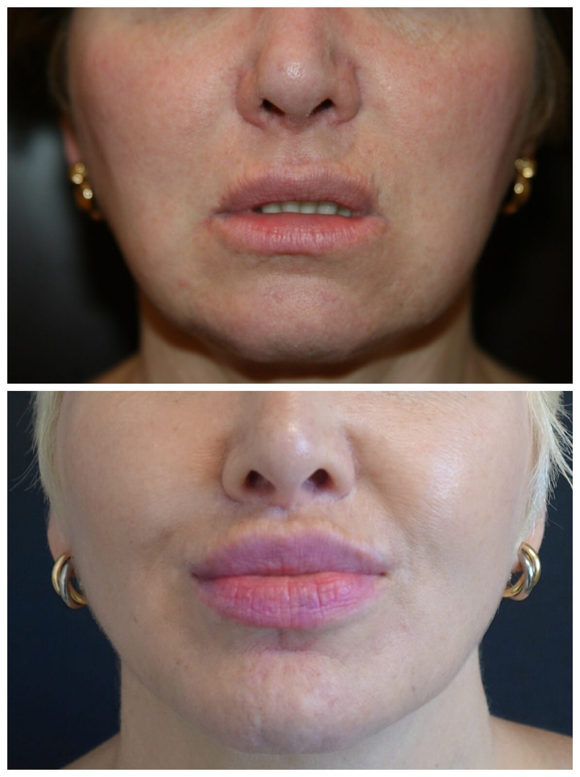 Kybella ® vs  liposuction for a double chin – Dr  Haworth