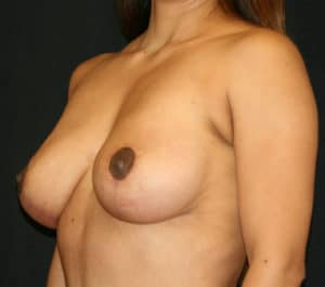 Natural, conservative result after breast implant revision and breast lift perform simultaneously.