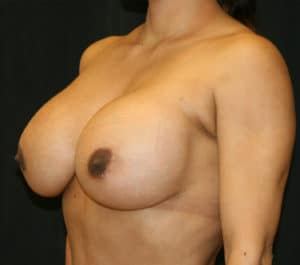 Fake pre-pectoral breast implants