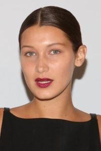 Bella Hadid with nasal deformities after closed rhinoplasty