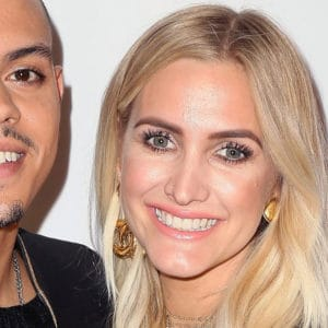 Ashlee Simpson with nasal deformities after closed rhinoplasty