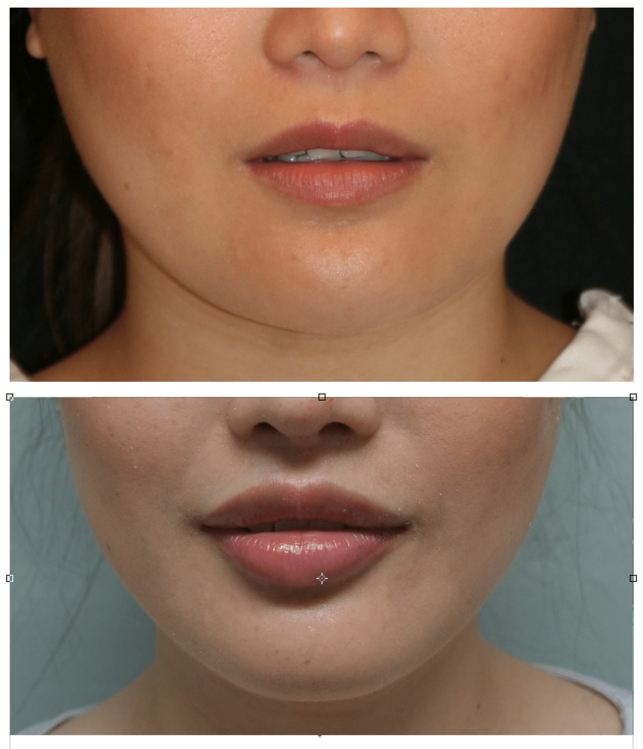 Beautiful Upper Lip Lifts without scars? – Dr  Haworth