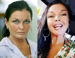 Schapelle Corby Before and After