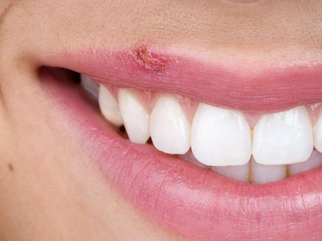 Cold sore herpes Simplex Type I of the lips