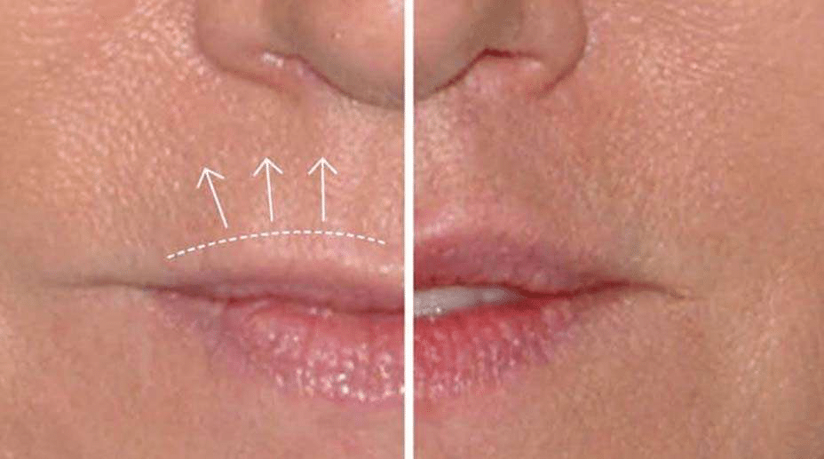 A before and after of a conservative upper lip liftA before and after of a conservative upper lip lift